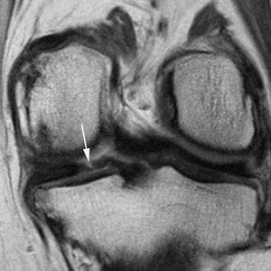 This coronal proton density-weighted image shows another example of a tear, which represents a vertical tear of the posterior horn of the medial meniscus. Credit: RSNA