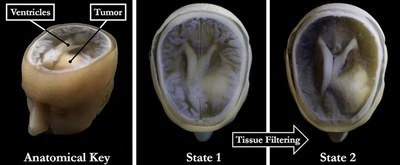 This 3D-printed model of Steven Keating's skull and brain clearly shows his brain tumor and other fine details thanks to the new data processing method pioneered by the study's authors - Image Credit: Wyss Institute at Harvard University.