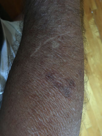 Fig 2. Purpura on the forearm. Also seen are white areas (stellate pseudoscar) due to former purpura.