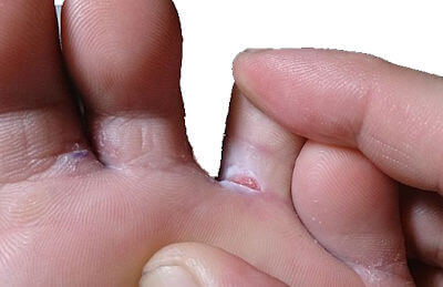 Image of athletes foot and infected under toes