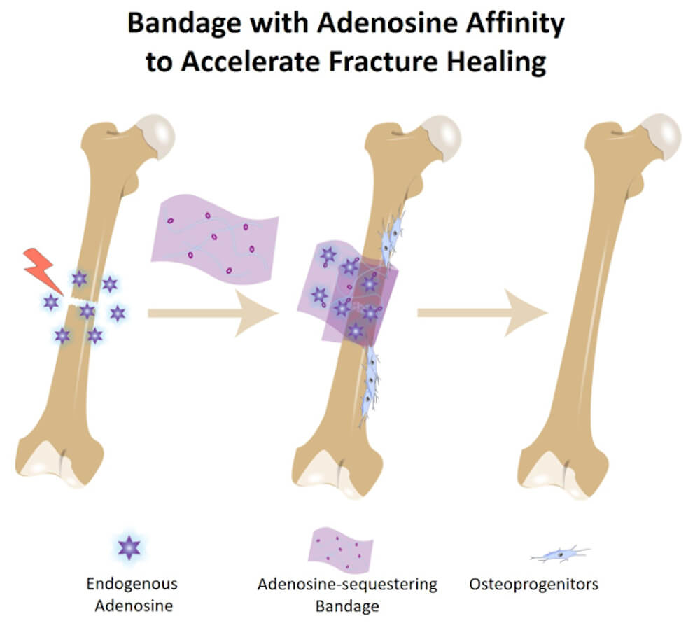 A new type of bone bandage traps naturally produced adenosine close to the break, which promotes and accelerates healing at the site before slowly releasing the adenosine back into the body - Image Credit: Duke University.