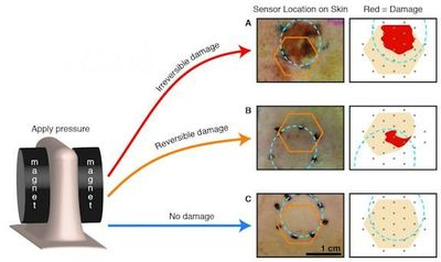 Researchers varied the amount of pressure applied to the skin, creating bedsores ranging in severity. The orange hexagon marks where the bandage was placed on the skin, and the dotted blue circle highlights where pressure was applied to the tissue. The reversible damage example highlights sensitivity of the smart bandage impedance sensor since the wound is not visible at the surface of the skin. Courtesy of UC Berkeley.