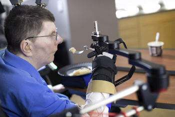 Bill Kochevar, who was paralyzed below his shoulders in a bicycling accident, is believed to be the first person with quadriplegia in the world to have arm and hand movements restored with the help of two temporarily implanted technologies. Photo Credit: Case Western Reserve University/Cleveland FES Center.
