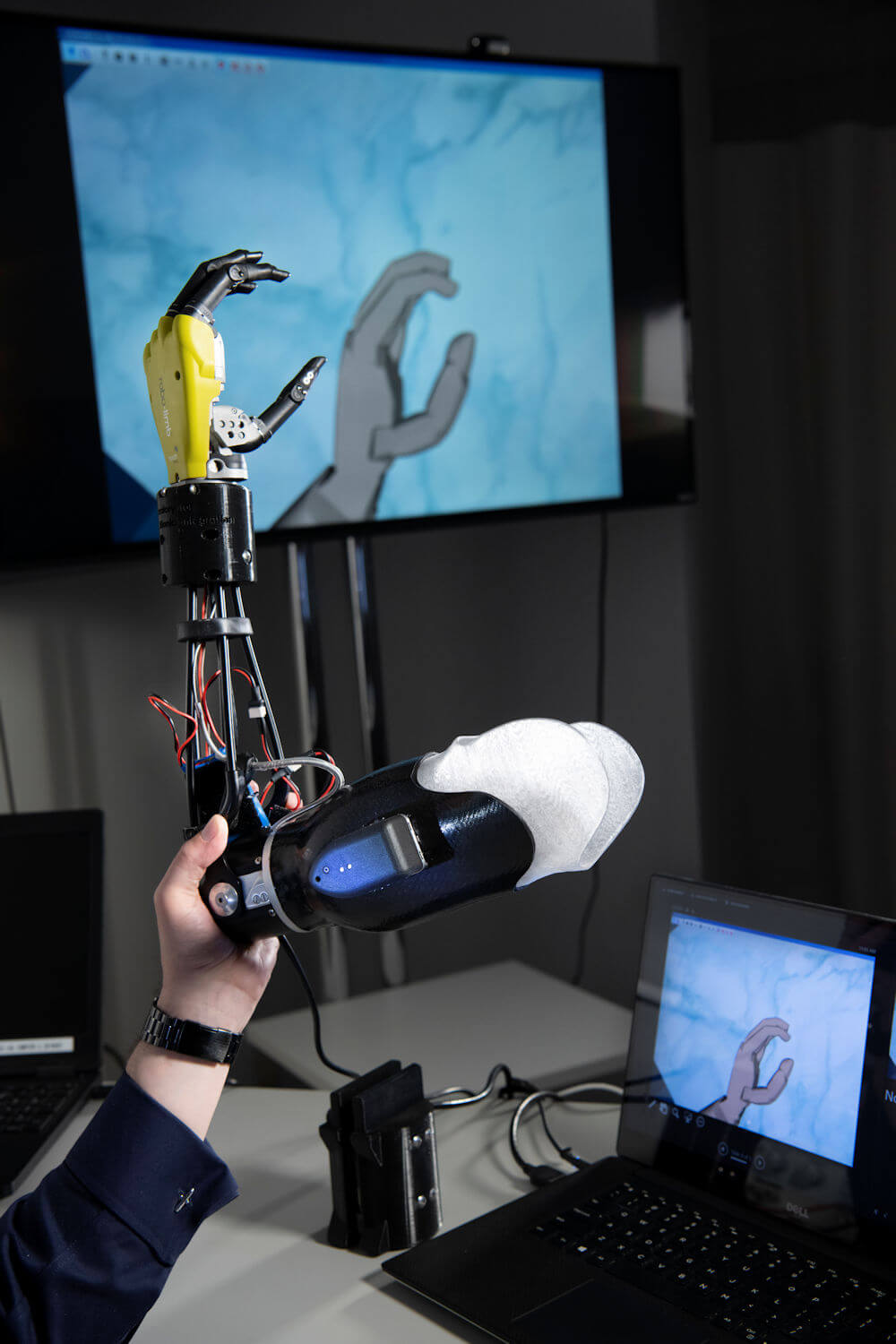 Real and virtual prosthetic hand that are dexterous enough to represent all of the different hand movement sensations that each of the study participant can feel with their neural-machine interface - Image Credit: Cleveland Clinic.