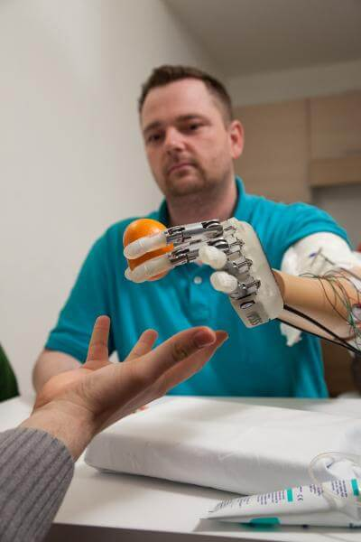 Amputee Dennis Aabo Sørensen wearing sensory feedback enabled prosthetic in Rome, March 2013. Photo Credit: Lifehand 2 / Patrizia Tocci
