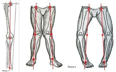 Picture of bow legs and knock knees