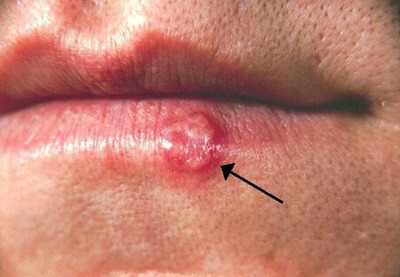 Herpes simplex virus (HSV), or commonly known as a cold sore, lesion on the lower lip, second day after onset.