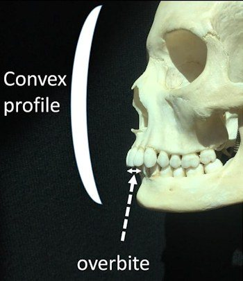 Slender faces are also associated with overbites and left-handedness. Image Courtesy of Philippe Hujoel.