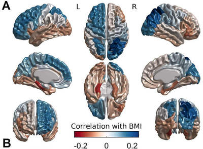 Diagram reveals how cortical thickness associates with Body mass index (BMI). BMI relates positively with cortical thickness in the blue shaded areas, and negatively with cortical thickness in the red areas - Image Credit: Uku Vainik.