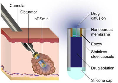 This diagram describes how the device Dr. Hood helped to develop is implanted into a cancerous tumor. Diagram Credit: Lyle Hood/UTSA