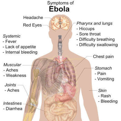 Illustration of regions of a human body and Ebola signs and symptoms that may be experienced in different areas.