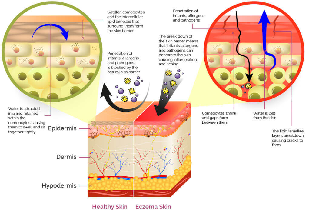 Labeled illustration compares the skin barrier difference between human healthy skin and eczema irritated skin.