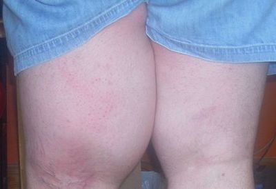 Left thigh showing edema caused by liposarcoma