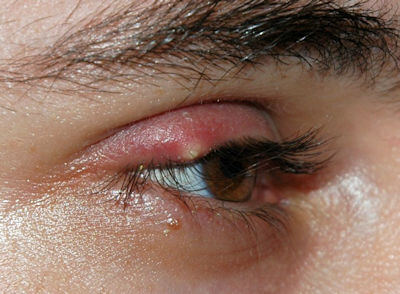 Image shows an eye stye on the upper right eyelid.