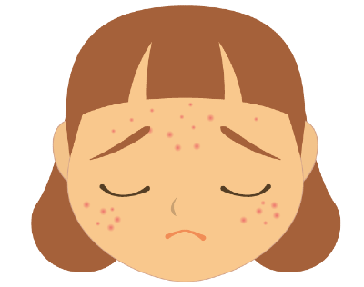Cartoon illustration of the face of a sad girl with facial acne.