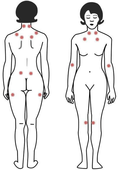 Diagram displays the location of the 9 paired tender points that comprise the 1990 American College of Rheumatology criteria for fibromyalgia diagnosis.