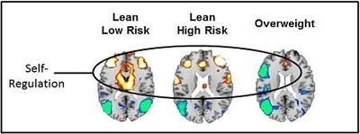 Fig 1. Increased brain activity when viewing food cues shown in yellow, orange, and red. Decreased activity is shown in blue. Activations are present in circuits that support self-regulation and attention (frontal cortex, anterior cingulate, and basal ganglia). Image Credit: Bradley Peterson, M.D., Children's Hospital Los Angeles.