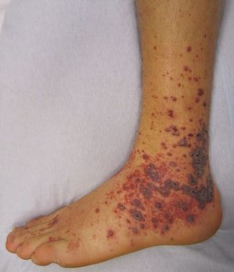 Image shows petechiae and purpura on a foot due to medication induced vasculitis