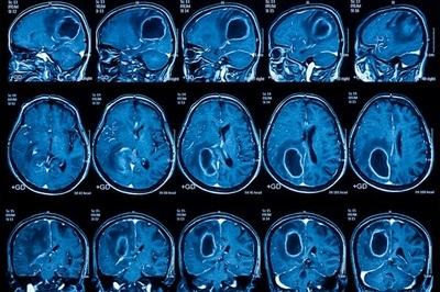 MRI scans show a patient with a brain tumor. A personalized vaccine targeting the deadly brain cancer glioblastoma may improve survival for some patients, according to a new study. Washington University School of Medicine in St. Louis was one of 80 clinical trial sites worldwide testing the vaccine - Image Credit: Washington University School of Medicine.