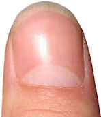 Photo of a health fingernail