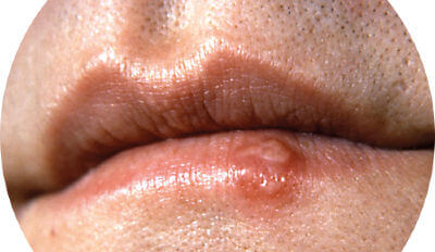 Image of Herpes labialis, commonly known as cold sores, a type of infection by the herpes simplex virus that affects primarily the lip. Symptoms typically include a burning pain followed by small blisters or sores.