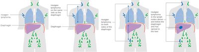 Labeled diagrams (4) showing stage 1 to stage 4 Hodgkin's lymphoma - Fig 1. Hodgkin Lymphoma. Fig 2. Hodgkin lymphoma on the same side as the diaphragm. Fig 3. Hodgkin lymphoma on both sides of the diaphragm. Fig 4. Hodgkin lymphoma in the lymph nodes above and below the diaphragm and has spread to the liver. (Cancer Research UK).
