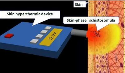 Schematic version of local skin hyperthermia and device - Diagram Credit: Science China Press