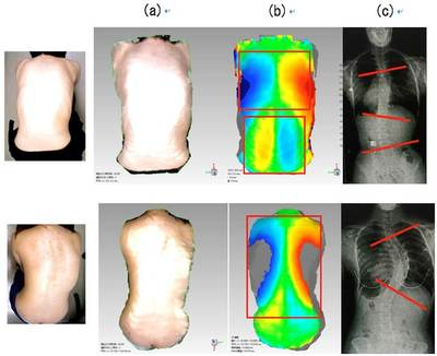 Image analyses of idiopathic scoliosis sufferers using a three-dimensional, back-surface-symmetry-recognition system - Top: images of a case in which a patient is to be treated with a brace. The thoracic vertebra curves by 34 degrees. Bottom: images of a case in which a patient requires surgery. The thoracic vertebra curves by 60 degrees. (a): a three-dimensional image of the back's surface (b): based on image (a), the system evaluates the degree to which a patient's back deviates from the ideal symmetry for a human back within a few seconds. The larger the deviation, the deeper the color. (c): comparison to X-ray photos. Deviations in the image correspond with curvatures. Images: Hokkaido University/Noa Co., Ltd.