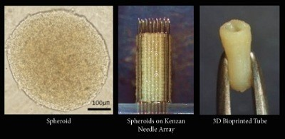 The Kenzan Method constructs scaffold-free 3D tissue by lancing spheroids onto a fine needle array, or kenzan. The spheroids can be constructed into small spheres, rods, sheets, tubes or other tissue configurations. As the engineered tissue fully matures, the individual spheroids fuse with one another into the desired pattern within a range of approximately 10x10x10 millimeter at 500 µm resolution. Cell Applications is utilizing its comprehensive primary cell bank and Cyfuse Biomedical's Regenova(R)