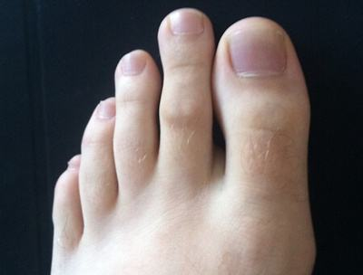 Photograph of a foot illustrating Morton's Toe, where the 2nd toe is longer than the big toe.