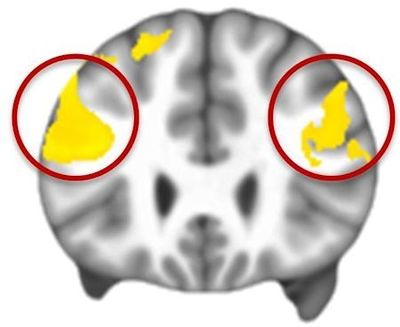 MRI data composite: the yellow indicates the prefrontal cortex areas that are significantly underactive in people with autism while regulating their emotions. (Gabriel Dichter, Ph.D., UNC School of Medicine)