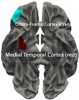 These two regions of the brain (orbitofrontal cortex and medial temporal cortex) were more similar in terms of thickness in youths with Conduct Disorder than in typically-developing youths. This suggests that the normal pattern of brain development is disrupted in youths with Conduct Disorder. Image Credit: Nicola Toschi.