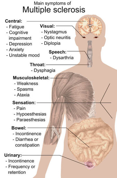 Labeled diagram of the human body showing main symptom areas of multiple sclerosis (MS).
