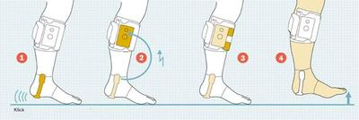 Graphic depiction of how the MyGait device works