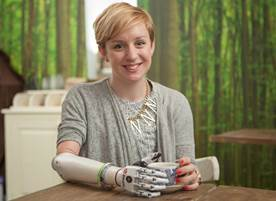 Nicky Ashwell is the first UK patient to be fitted with the bebionic small hand, designed especially for women and teenagers due to its small proportions.