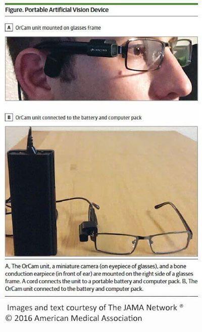 Orcam device