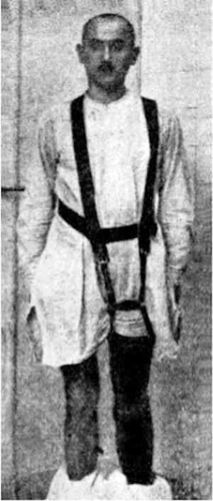 Otto Bock Daehne Artificial Leg