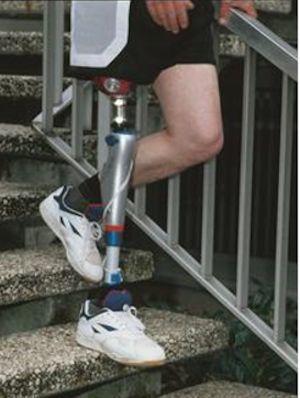 Otto Bock modular leg prostheses for children