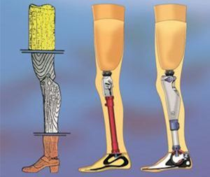 The C-Leg, first microprocessor knee in the world