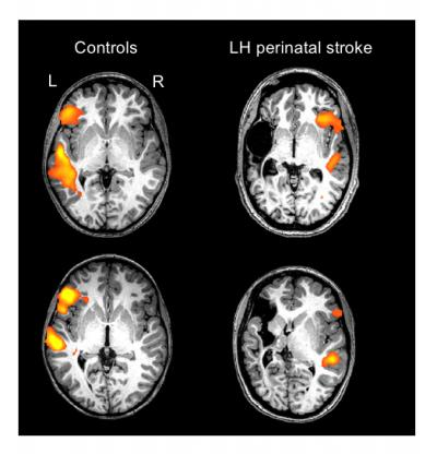 These are individual scans of two healthy controls and two individuals with a left-hemisphere (LH) perinatal stroke. The orange/yellow activation shows the normal language areas of the left hemisphere in healthy individuals, as compared with the reorganized language areas in individuals with a left-hemisphere perinatal stroke - Image Credit: Elissa Newport.