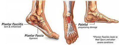 Diagram showing areas affected by plantar fasciitis