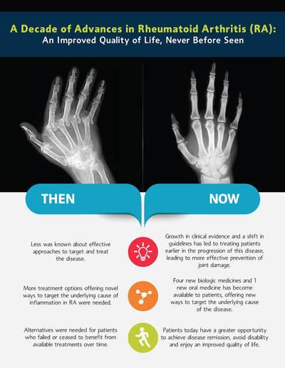 A Decade of Innovation in Rheumatoid Arthritis