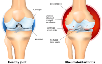 Illustration of a normal joint (Left) Vs a joint with Rheumatoid Arthritis (RA) (Right).