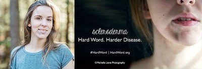 Scleroderma - hard word - harder disease. Image Credit: Scleroderma Foundation