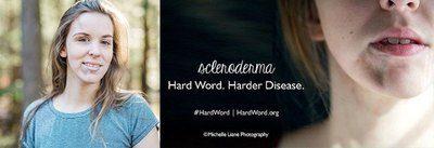 Scleroderma - hard word - harder disease. Image Credit: Scleroderma Foundation