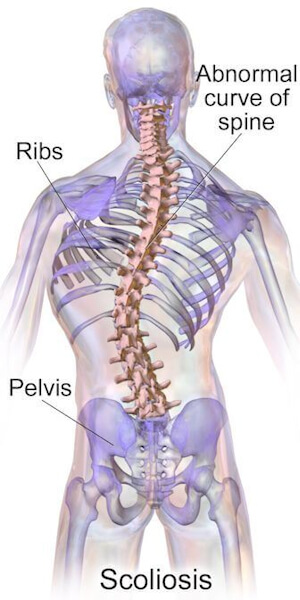 Note the spinal curve to the right in the medium back and to the left in the lower back. Source: Blausen.com staff (2014). Medical gallery of Blausen Medical 2014. WikiJournal of Medicine 1 (2). DOI:10.15347/wjm/2014.010. ISSN 2002-4436. [CC BY 3.0 (https://creativecommons.org/licenses/by/3.0)], from Wikimedia Commons.