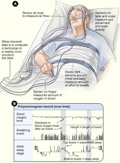 Fig 1. Illustration shows standard setup for a polysomnogram. In figure A, the patient lies in a bed with sensors attached to the body. In figure B, the polysomnogram recording shows blood oxygen level, breathing event, and rapid eye movement (REM) sleep stage over time - National Heart Lung and Blood Institute (NIH).