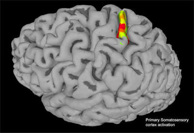 fMRI is used to highlight select implant sites in the somatosensory cortex. Electrodes implanted in this region were able to stimulate neurons that produced physical sensations, like a squeeze or tap, in the arm of a paralyzed man. Image Courtesy of the Andersen lab.