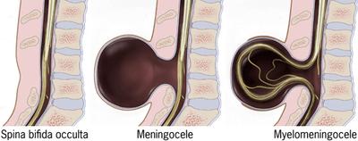 Diagram of the types of Spina Bifida showing Spina Bifida Occulta, Meningocele, and Myelomeningocele.