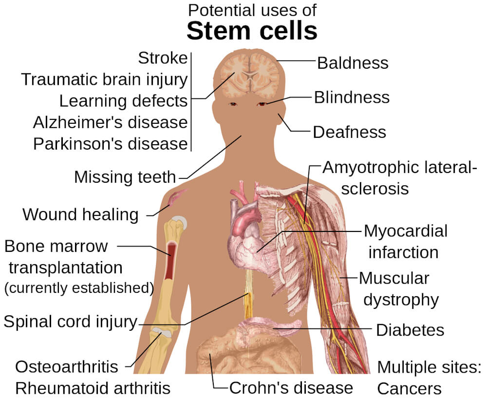 Diagram outlines potential uses of stem cell regenerative medicine in the human body